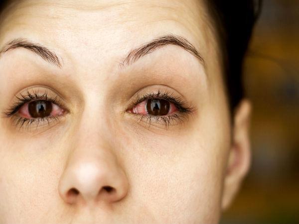 Waspada Glaukoma, Ayo Periksa Mata Sejak Dini