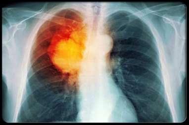 Mantan Perokok Dapat Turunkan Risiko Kanker Paru Lewat Olahraga