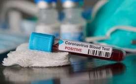 Terinfeksi Covid-19, Dishub Situbondo & Kampus Unars Ditutup