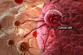 Cegah Kanker Serviks Dengan 3 Langkah Ini