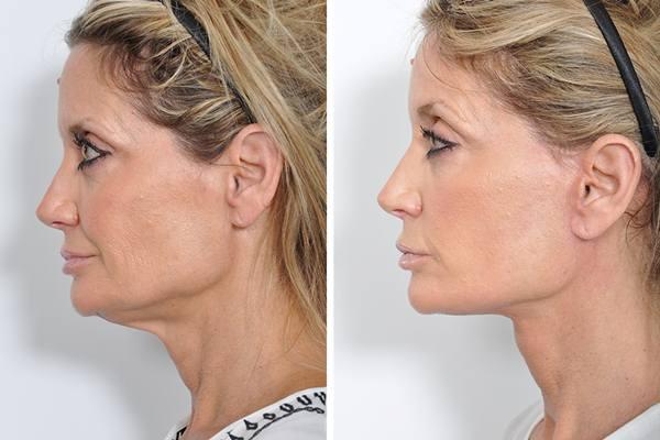 Ilustrasi wajah yang dioperasi plastik 'facelift' - Istimewa
