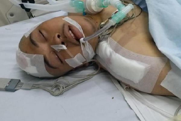 Mahasiswa Fakultas Hukum Al Azhar Faisal Amir (21) dalam keadaan kritis dan dirawat di RS Pelni Petamburan. Dia mengalamu sejumlah luka saat demo mahasiswa di DPR, Selasa (24/9/2019). - Twitter @anandabadudu