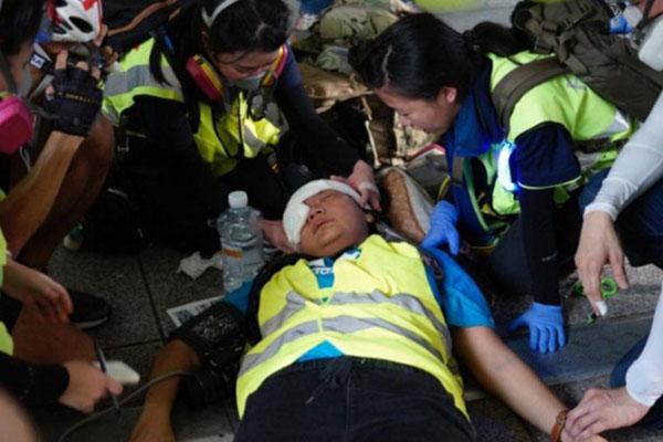 Perempuan yang diduga wartawan asal Indonesia, Veby Mega Indah (tengah), mendapat perawatan medis setelah areal dekat matanya kena peluru karet. Veby terluka saat meliput aksi unjuk rasa di Wan Chai, Hong Kong, Minggu (29/9/2019). - Antara-Twitter@yukisuet1