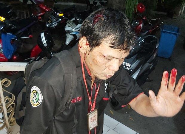 Wartawan Sinar Pagi Haryawan menjadi korban kekerasan oleh oknum aparat kepolisian di Polda Metro Jaya, Senin (30/1/2019). - Istimewa