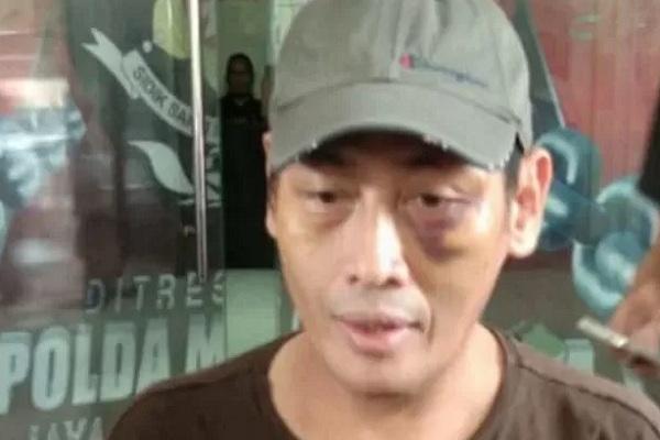 Ninoy Karundeng usai diperiksa di Mapolda Metro Jaya, Jakarta. - Antara