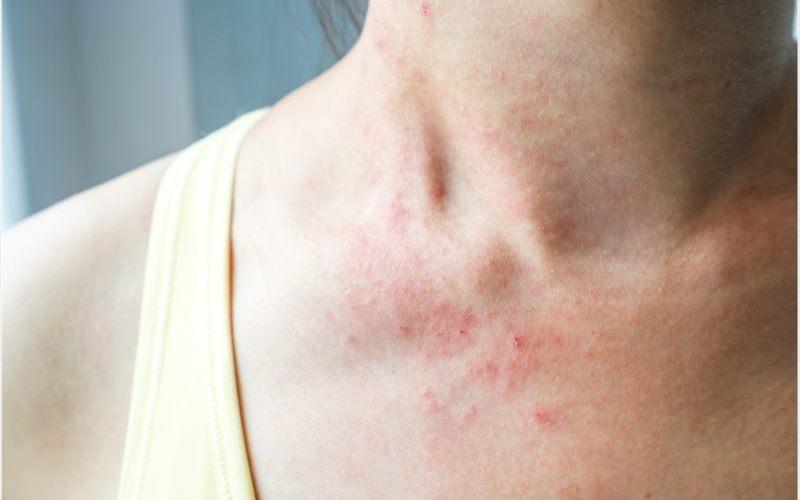Ruam merah padda kulit menjadi gejala baru virus corona (Covid-19). - News Medical