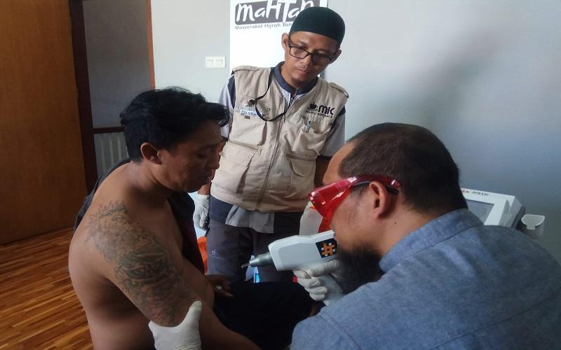 Proses penghapusan tatto gratis yang dilakukan Komunitas Hijrah Makassar - Istimewa