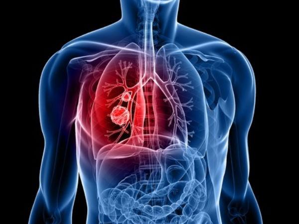 Ilustrasi kanker paru - Istimewa