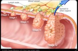 Kanker Kolorektal: Kanker Pembunuh Keempat Didunia