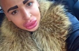 Cowok Ini Habiskan 150 Ribu Dolar AS untuk Operasi Demi Mirip Kim Kardashian