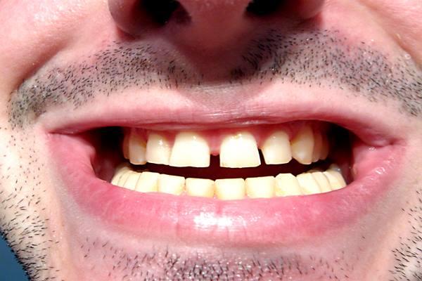 Kesehatan gigi dan mulut - Istimewa