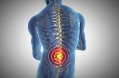 Jangan Remehkan Sakit Punggung, 13% Berisiko Kematian