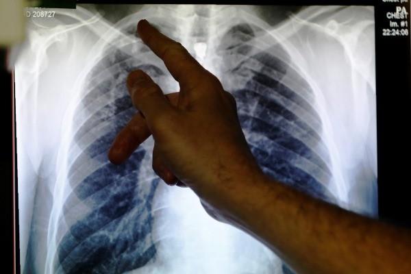 Foto rontgen sinar-X menunjukkan paru-paru yang terinfeksi tuberkulosis. - Reuters/Luke MacGregor