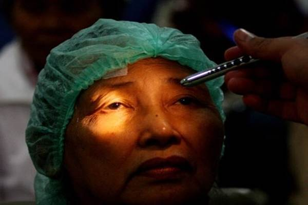 Katarak penyebab utama kebutaan di Indonesia - Antara