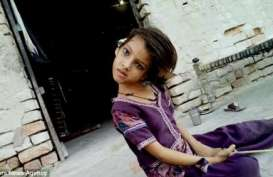 Kisah Seorang Anak Pengidap Kondisi Leher Miring 180 Derajat