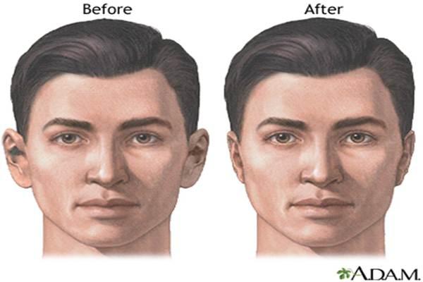 Reshaping wajah - Ilustrasi