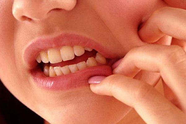 Ilustrasi sakit gigi. - Istimewa