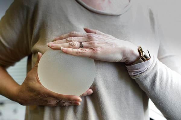 Implan payudara: bisa sebabkan kanker langka - medicalnewstoday.com/Ilustrasi