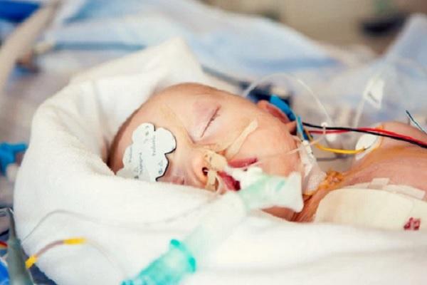 Bayi dengan penyakit jantung bawaan. - Istimewa