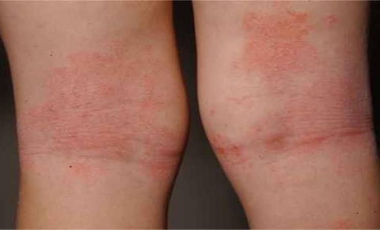 Dermatitis atopik - Istimewa