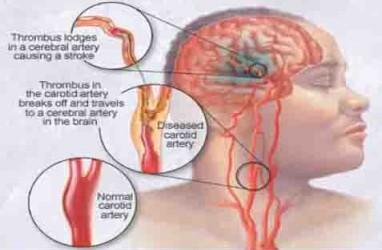 PTSD Tingkatkan Risiko Stroke Usia Dini
