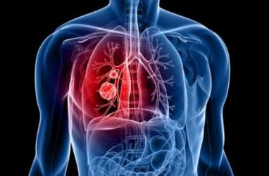 Informasi Kanker Paru yang Patut Anda Tahu