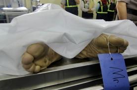 Kerangka Manusia yang Ditemukan di Bandung Berjenis…