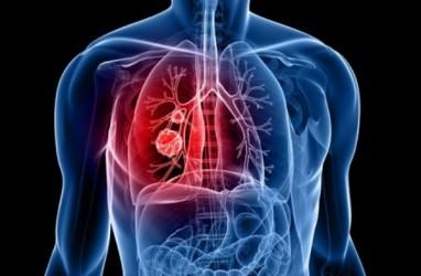 Kanker Paru Paling Mematikan, Ini Penyebabnya