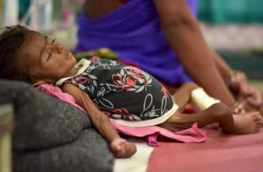 Waspada, Anak Kurang Gizi Rentan Terinfeksi