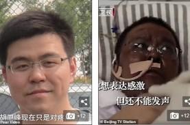 Dokter Wuhan yang Kulitnya Berubah Saat Pengobatan…
