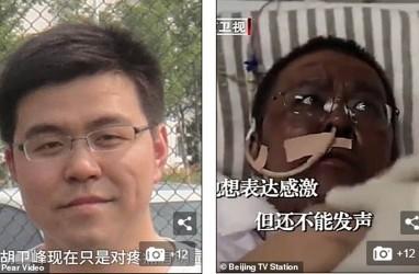 Dokter Wuhan yang Kulitnya Berubah Saat Pengobatan Covid-19 Akhirnya Meninggal