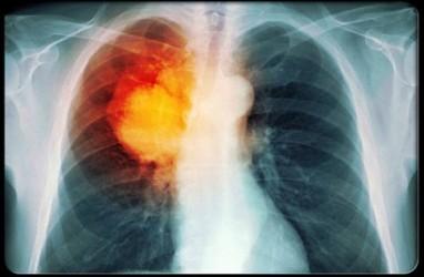 Wajah Bengkak Bisa Jadi Gejala Kanker Paru