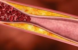 Pembuluh Darah yang Sehat, Bisa Lindungi Anak dari Infeksi Virus Corona