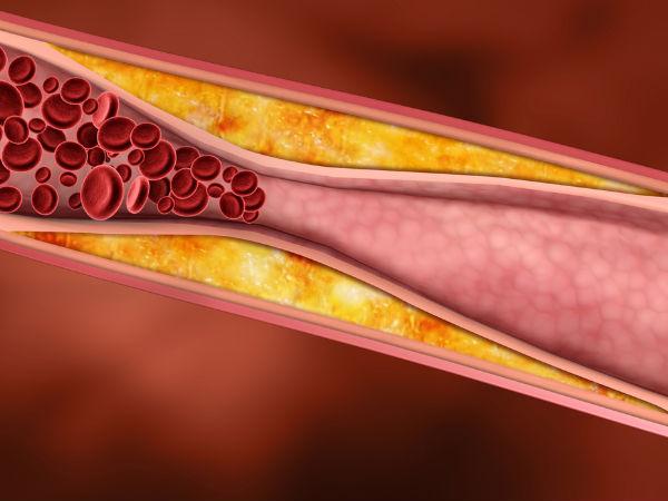 Pembuluh darah - Istimewa