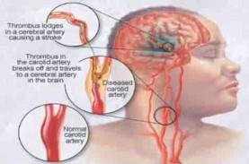 Mengenal Sindrom Metabolik, Si Penghantar Penyakit…