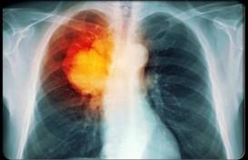 Pakar Kesehatan di China Fokus Tingkatkan Masa Hidup Pasien Kanker