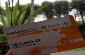 Ridwan Kamil Pamer Rapid Test Corona  Buatan Unpad Lebih Akurat dan Murah, Nyaris Setara PCR