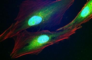 Terapi Kanker dengan Nuklir