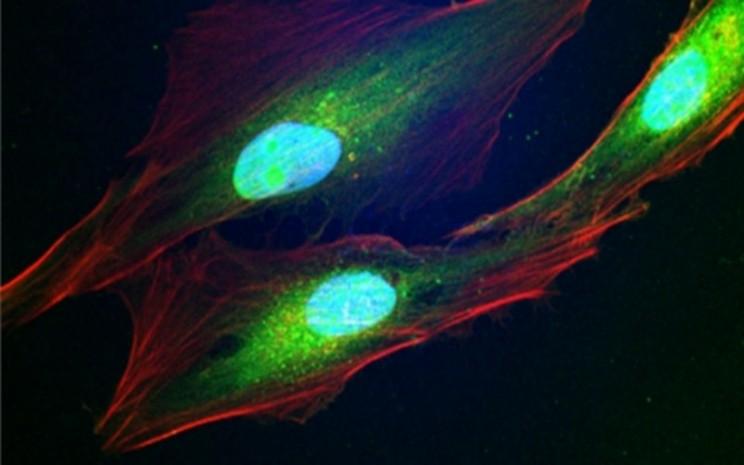 Borond compoun pada sel kanker - universitas Okayama