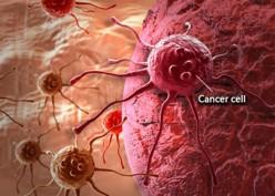 Mengenal Kanker dan Cara Mencegahnya