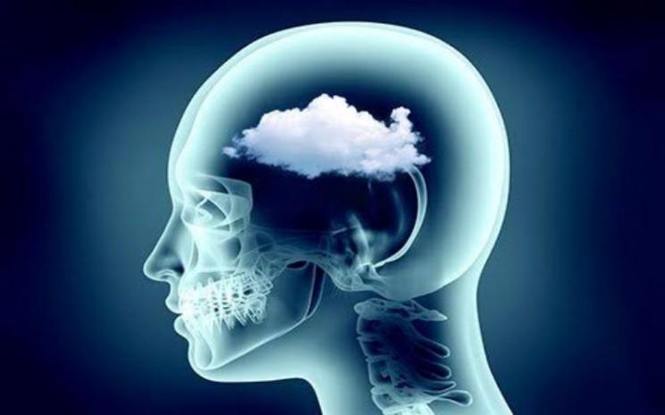 Ilustrasi kabut otak