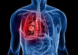 Pencegahan dan Pengobatan Kanker Paru Harus Tepat Waktu