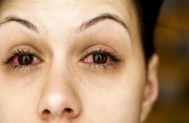 Mata Berair Menjadi Gejala Baru Virus Corona
