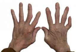 Jari Tangan Nyeri, Bengkak Kemudian Bengkok, Hati-hati Penyakit Ini