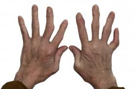 Jari Tangan Nyeri, Bengkak Kemudian Bengkok, Hati-hati…