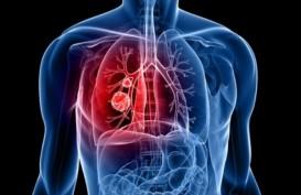 Kemoterapi dan Imunoterapi, Standar Baru Pengobatan Kanker Paru