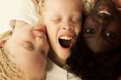 Ini Beberapa Jenis Albino