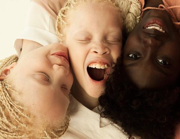 Albino memiliki gejala pada perubahan warna rambut dan kulit. - Instagra @lara_mara_sheila