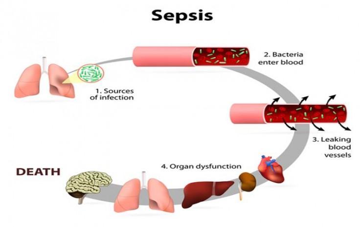 Dampak Galactosemia - medlineplus.gov/Designua/Shutterstock.com