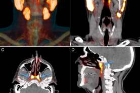 Ilmuwan Temukan Organ Baru di Tenggorokan Manusia